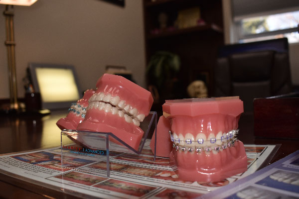 Orthodontic services at Nick Romanides Orthodontics