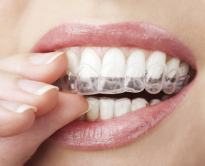 Putting in Clear Aligners at Nick Romanides Orthodontics